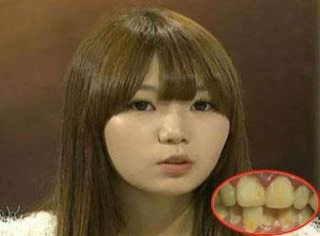 姓名:其賢智(Gi hyeon ji)年齡:20歲職業:美容師經典:十年沒有刷牙在節...