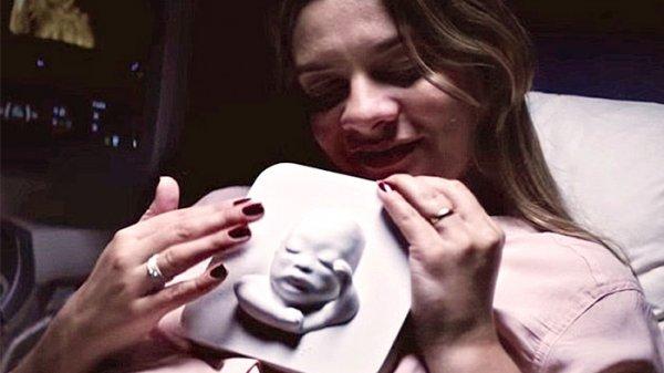 而醫生卻給了她一個驚喜——超聲波掃描的3D列印圖像,<br /> <br />  ...