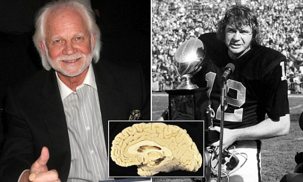 在鋪天蓋地的研究來看, NFL最近做了一些改動,包括更嚴格的腦震盪協議...