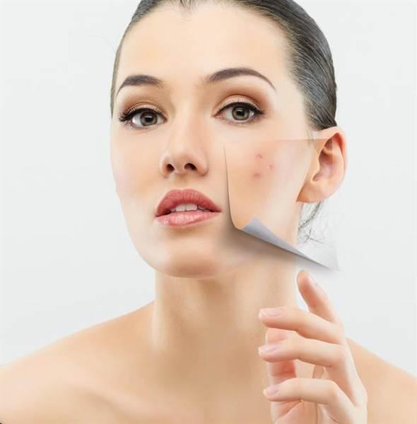 雖然說在痘痘的黑粉刺階段之前儘早處置是最好的。但是,用指尖或指甲強...
