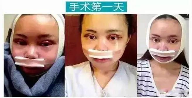 手術的第一天,對臉型進行大改造。